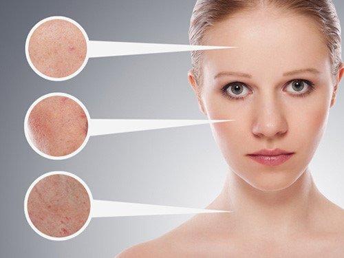 Chăm sóc da mặt với nhiều lỗ chân lông to như thế nào?