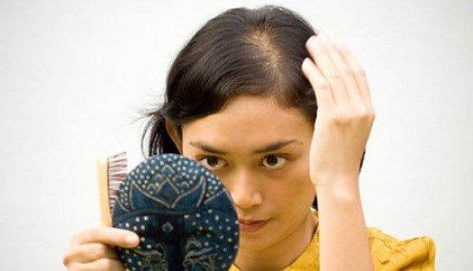 Bất ngờ với 5 mẹo chống rụng tóc đơn giản từ thảo dược