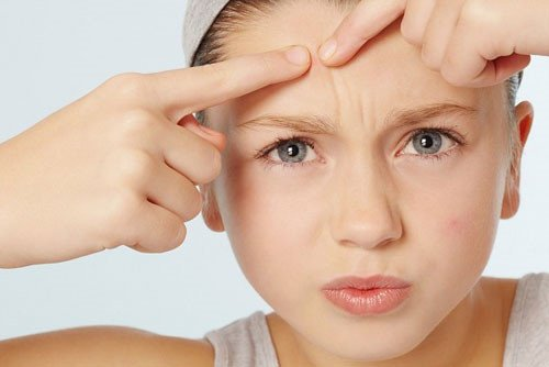 Những nguyên tắc chăm sóc da mặt mụn bạn không thể không biết