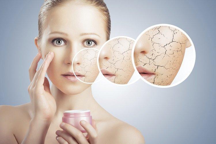 Bí kíp dưỡng ẩm cho da khô bằng phương pháp tự nhiên cực hay