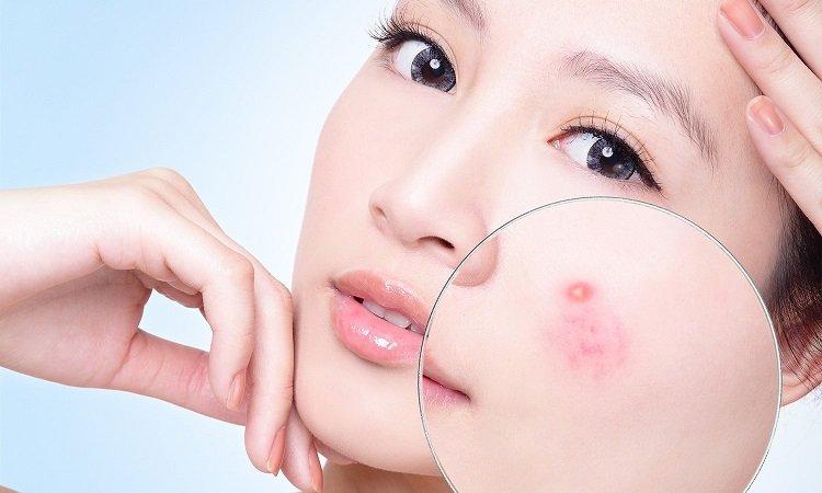 5 cách trị mụn ẩn dưới da bằng thiên nhiên cực kỳ hiệu quả