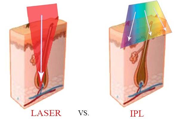 ưu nhược điểm của công nghệ IPL